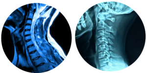 Cervical Spine X-Ray vs MRI