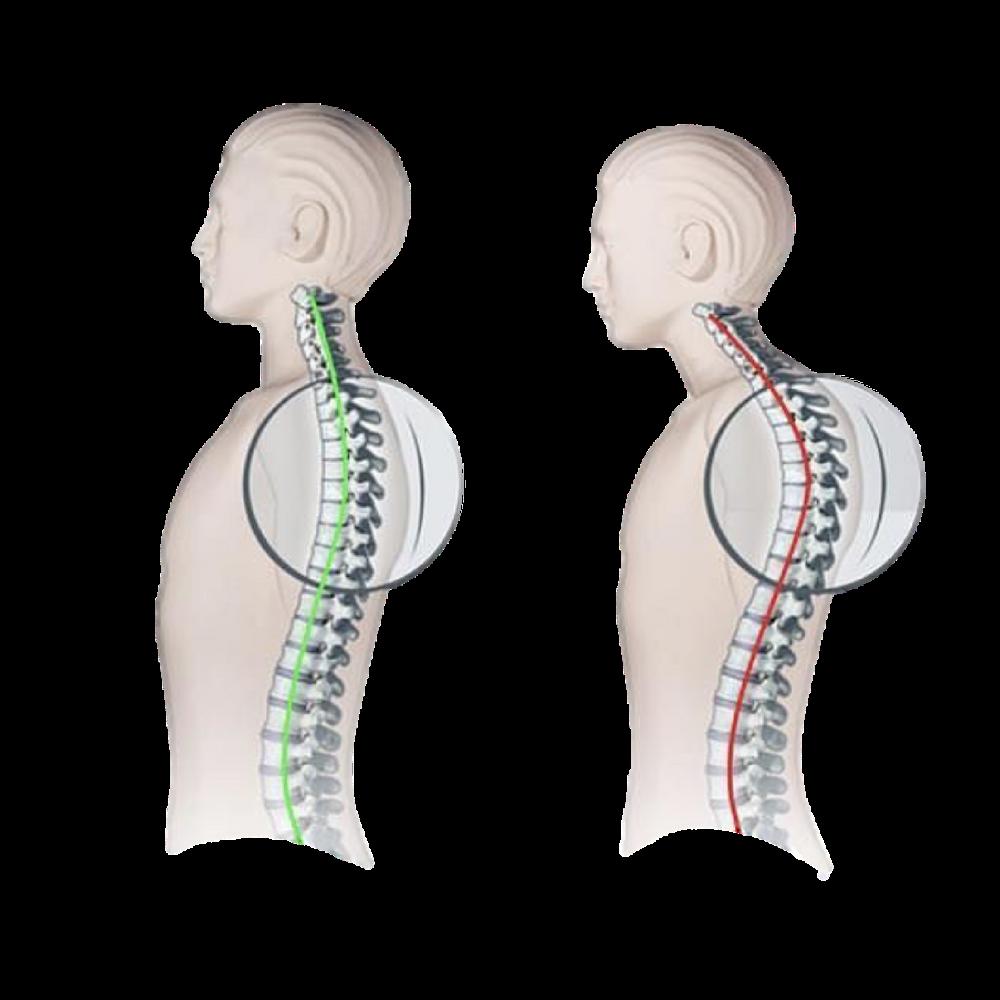 Bad Posture Causes Neck Pain