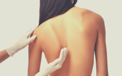 Are Muscles The Cause Of My Scoliosis?