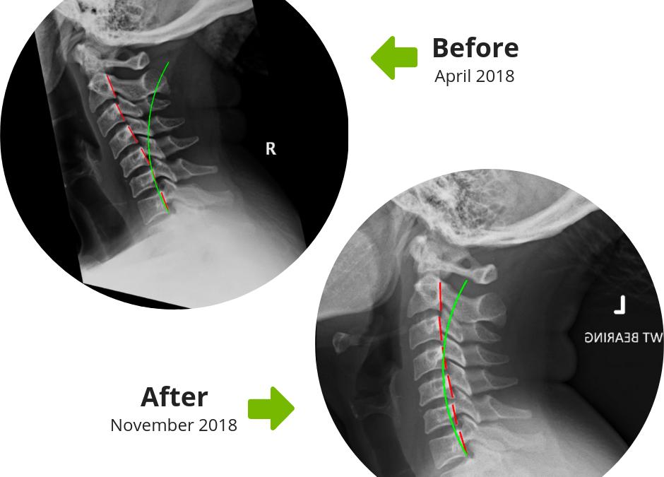X-Rays vs MRI